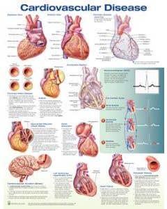 09-31-9791 Cardiovascular Disease Chart