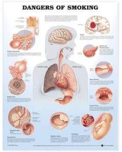 09-31-9865 Dangers of Smoking Chart