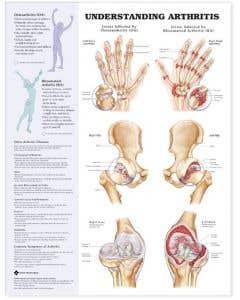09-31-9877 Understanding Arthritis Chart