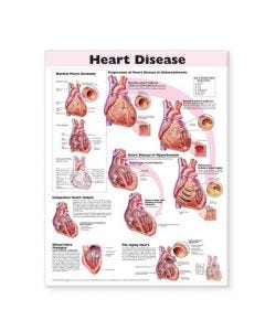 09-31-9912 Heart Disease Chart
