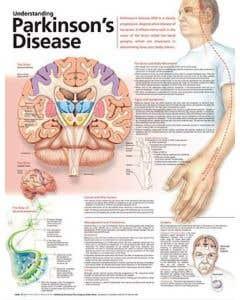 09-31-9978 Understanding Parkinson's Disease Chart