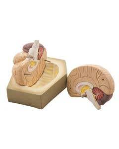 10-81-0208 Model Human Brain - 2 Parts