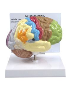 10-81-295 Half Brain Sensory/Motor Model