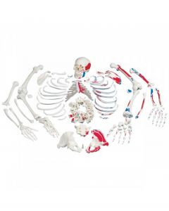 10-81-5263 Disarticulated Full Skeleton with Case