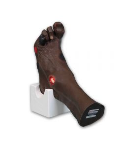 11-81-0950-BLK Wilma Wound Foot