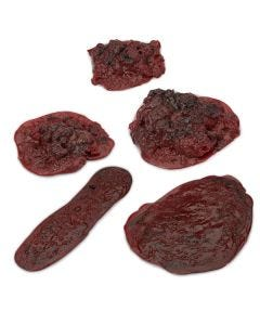 14-17-0714 Nasco Life/form® Clots and Hemorrhages - Set of 5