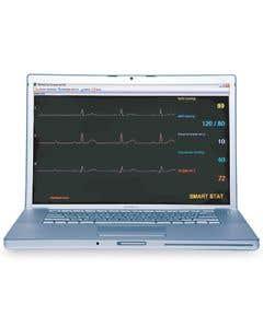 Sim Vitals 5 Line Monitor For Smart Stat