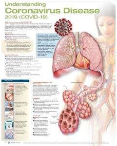 09-31-5659 Understanding Coronavirus 2019 COVID-19 Chart