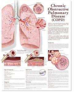 Chronic Obstructive Pulmonary Disease Chart