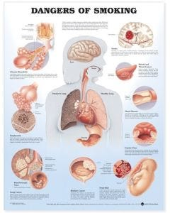 09-31-9865 Dangers of Smoking Chart