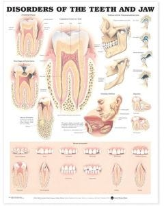09-31-9866 Disorders of the Teeth/Jaw Chart