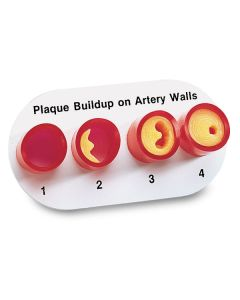 Model of Artery Walls Replica