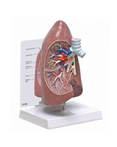 10-81-310 Right Lung
