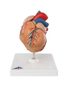 10-81-704 Classic Heart Model with Left Ventricular Hypertrophy-Includes 3B Smart Anatomy