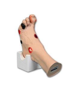 Wilma Wound Foot™, Light