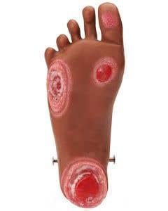 Nasco Life/form® GERi™ and KERi™ Optional Pressure Ulcer Foot, Medium