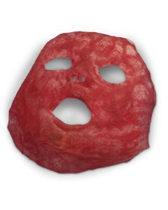 Nasco Life/form® Simulated Face Burn